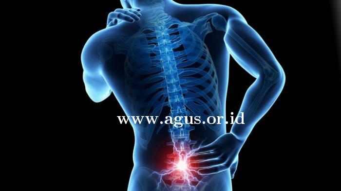 www. agus.or.id-gus-popo-Penyakit-tulang-belakang